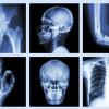 4 вида храни, които причиняват декалцификация на костите
