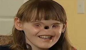 Касиди Хупър преди първите си операции