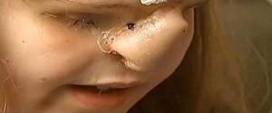 Касиди отблизо с присадката на нос