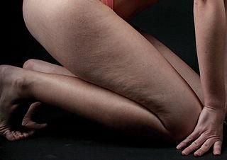 Диета и упражнения срещу целулит