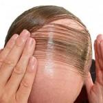 мъжки косопад лечение