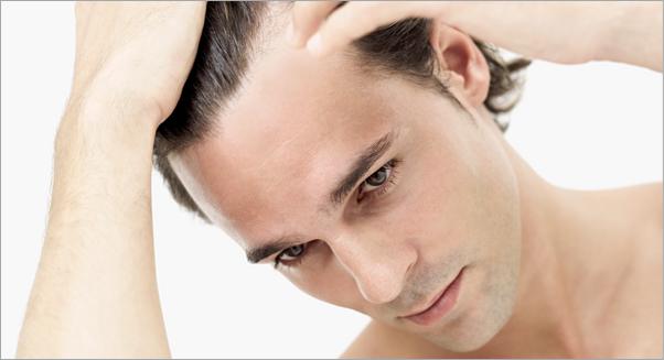 предотвратяване на косопад