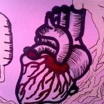 сърдечни болести