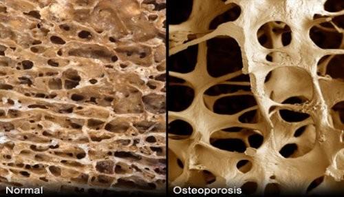 Здрава кост и кост с остеопороза