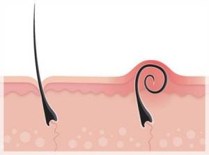 Факти за подкожните косми