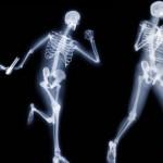 skelet-zdrave