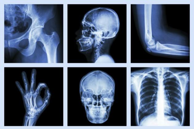 kosti-kalcii