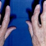 artrit-pomosht