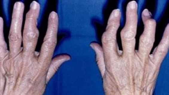 Как да облекчим симптомите на артрита