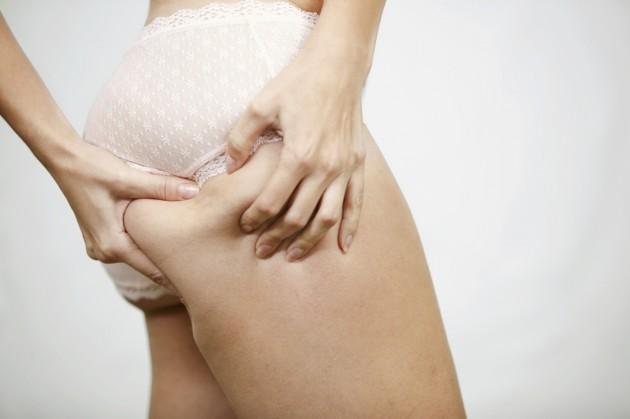 Защо жените имат целулит?