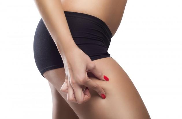 Как да имаме красиви крака без целулит