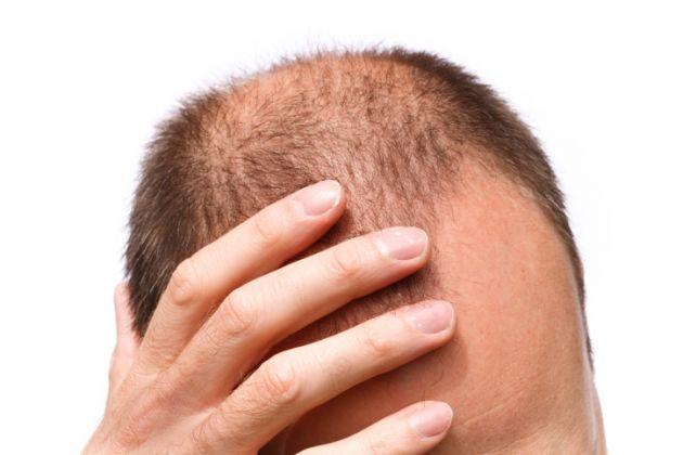 Рискови фактори, които причиняват косопад и оплешивяване