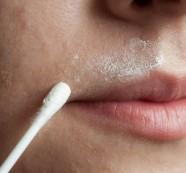 2 домашни рецепти срещу нежеланото окосмение по лицето
