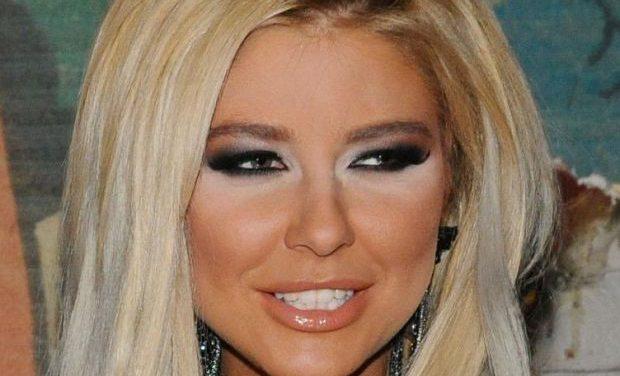 Майко мила! Какво се е случило с лицето на Андреа? Шокиращи Снимки: